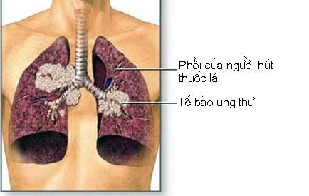 Phát hiện sớm ung thư phổi bằng xét nghiệm máu 2
