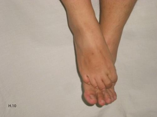 Dùng gót chân này giẫm mạnh và xoa bàn chân kia và ngược lại cũng là một cách để giải rượu.