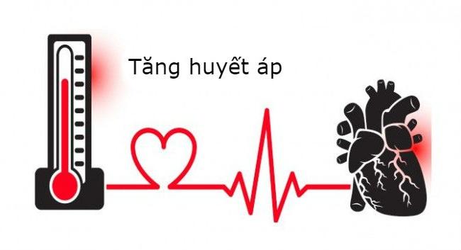 Tăng huyết áp gây nguy cơ tai biến như đột quỵ