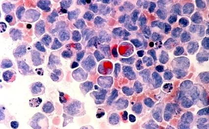 Liệu pháp mới thu nhỏ khối u bệnh bạch cầu