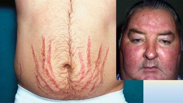 Hội chứng Cushing cũng nằm trong số những tai biến gây ra bởi sản phẩm tẩy trắng da