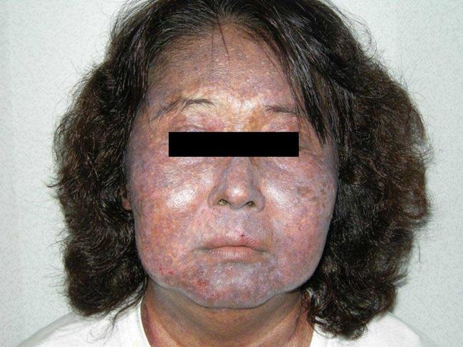 Người mắc hội chứng Ochronosis