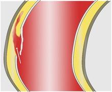 Bóc tách động mạch chủ, rách lớp áo trong máu đi vào lớp áo giữa và dọc theo lớp áo giữa