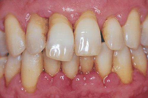 Viêm chân răng.