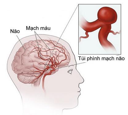 Túi phình mạch não.
