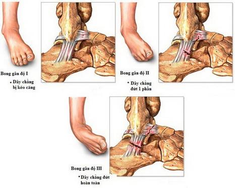 Các mức độ khi bị bong gân cổ chân.