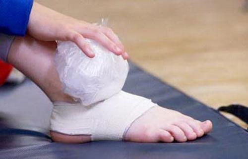 Người bệnh cần băng ép cố định và chườm lạnh khi bị bong gân.