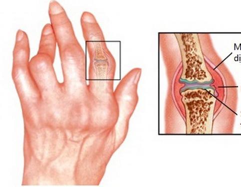 Hình ảnh bàn tay ở người viêm khớp dạng thấp.