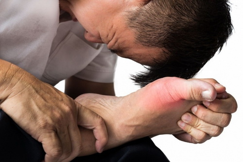 Gút cấp gây sưng nóng đỏ, đau dữ dội tại khớp.