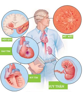Tăng huyết áp gây nhiều hệ lụy cho sức khỏe.