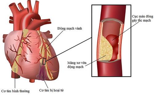 Tỏi có tác dụng ngăn xơ cứng động mạch, ngừa cục máu đông.