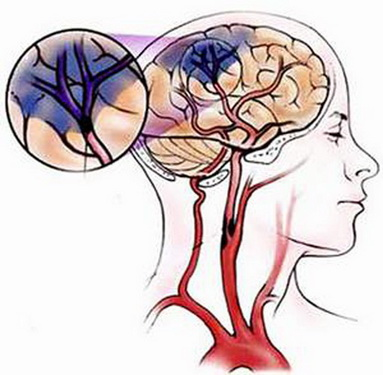 Tổn thương do nhồi máu não.