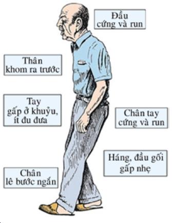 Biểu hiện của người mắc bệnh Parkinson.