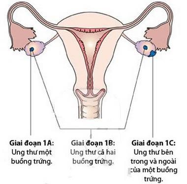 Các giai đoạn phát triển ung thư buồng trứng.