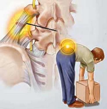 Bê vật nặng đúng tư thế giúp phòng ngừa đau cột sống thắt lưng.