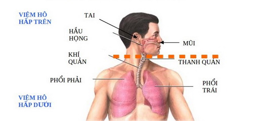 Phòng bệnh nhiễm khuẩn đường hô hấp khi giao mùa