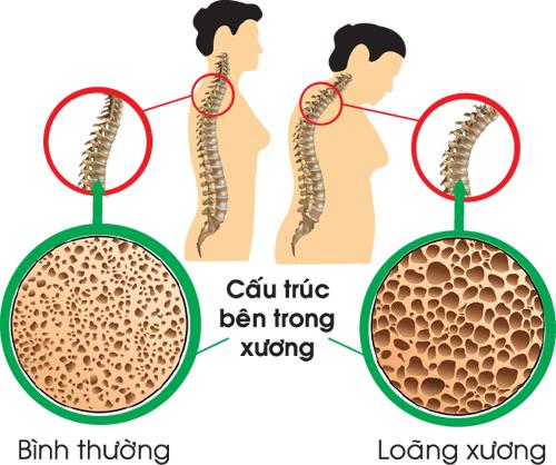 Đậu xanh giàu chất xơ, giúp giảm cholesterol, tốt cho xương.