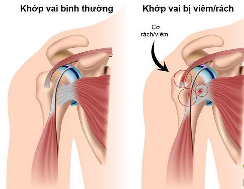 Viêm quanh khớp vai nếu điều trị không đúng có thể dẫn đến cứng khớp vai...