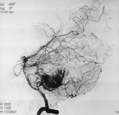 Hình ảnh mạch não bệnh nhân T. trước khi can thiệp.