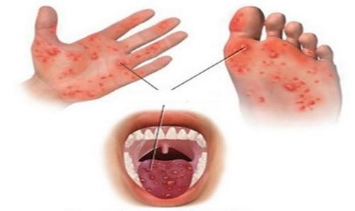 Các nốt ban phỏng nước trên da ở trẻ mắc bệnh tay - chân - miệng.