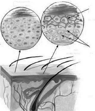 Da bình thường (trái), nấm da (phải).