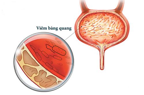 Viêm bàng quang - Một nguyên nhân gây tiểu nhiều.