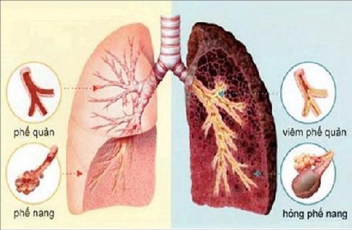 Bệnh lý ở ôn bệnh chủ yếu biểu hiện ở vệ khí, dinh huyết và tạng phủ thuộc tam tiêu.