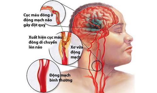 Hình ảnh cục máu đông gây đột quỵ.