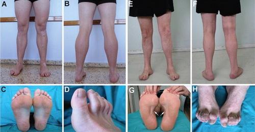 Một số biểu hiện tổn thương khớp trong bệnh Charcot - Marie - Toot.