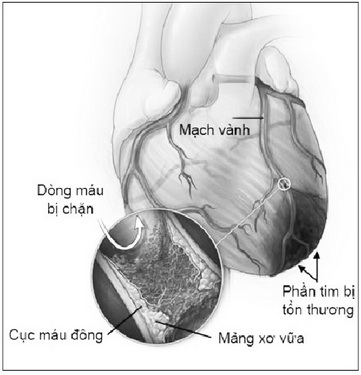 Nguy cơ do nhồi máu cơ tim.