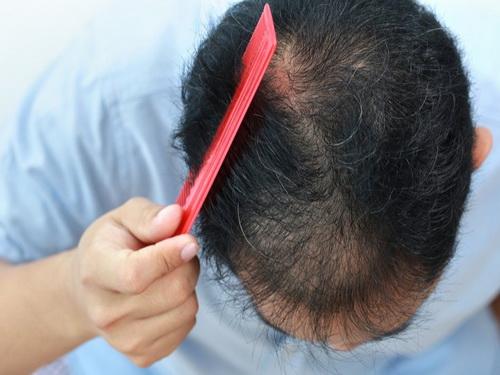 Rụng tóc là biến chứng khá phổ biến ở bệnh nhân đái tháo đường.