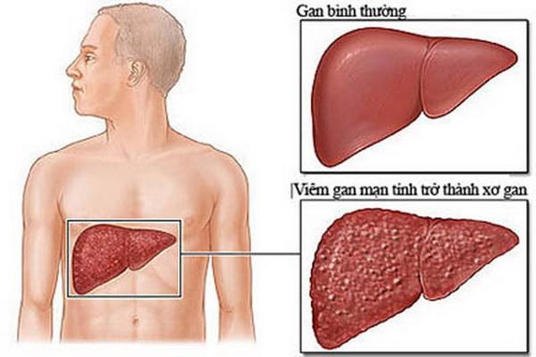 Viêm gan mạn tính kéo dài dễ dẫn đến xơ gan, thậm chí ung thư gan.