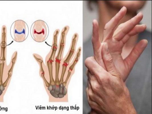 Người bệnh viêm khớp dạng thấp có biểu hiện sưng nóng đỏ đau các khớp.