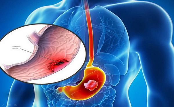 Viêm loét dạ dày tá tràng được xếp vào chứng vị quản thống của y học cổ truyền. Bệnh do nhiều nguyên nhân gây ra.