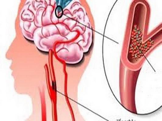 Rối loạn tuần hoàn não là một trong những nguyên nhân gây chóng mặt.