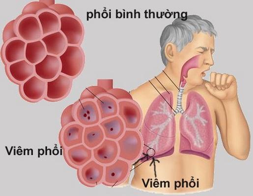 Viêm phổi là một biến chứng do sốt virus.