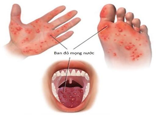 Các nốt ban đỏ mọng nước trong bệnh TCM.