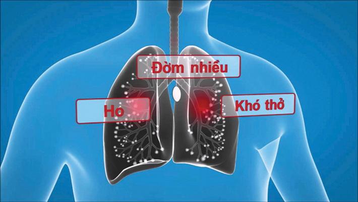 Đàm nhiệt khái thấu là chứng hay gặp trong một số bệnh hô hấp.