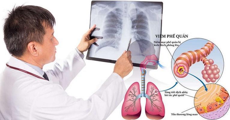 Trời rét đậm, người cao tuổi rất dễ mắc bệnh đường hô hấp như viêm phế quản... do sức đề kháng kém.