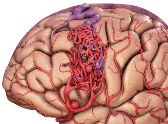 dị dạng mạch máu não thể hang
