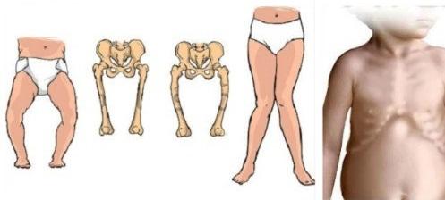 Còi xương gây dị dạng xương ở trẻ