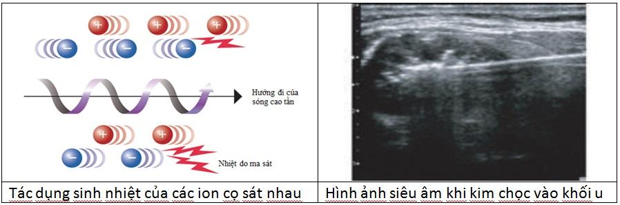 Ðốt u tuyến giáp lành tính bằng sóng cao tần