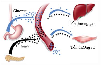 Thuốc trị rối loạn lipid máu statin