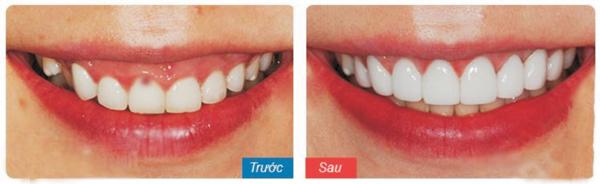 Mặt dán sứ cải thiện màu sắc giúp răng trắng đẹp