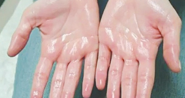 Cách khắc phục chứng  ra mồ hôi tay