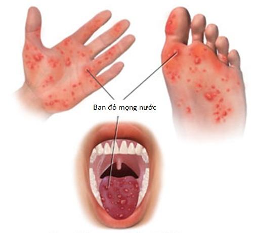 6 bệnh ngoài da hay gặp ở trẻ mùa nắng nóng