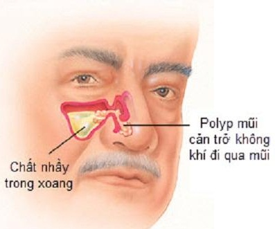 Polyp mũi có nguy hiểm?
