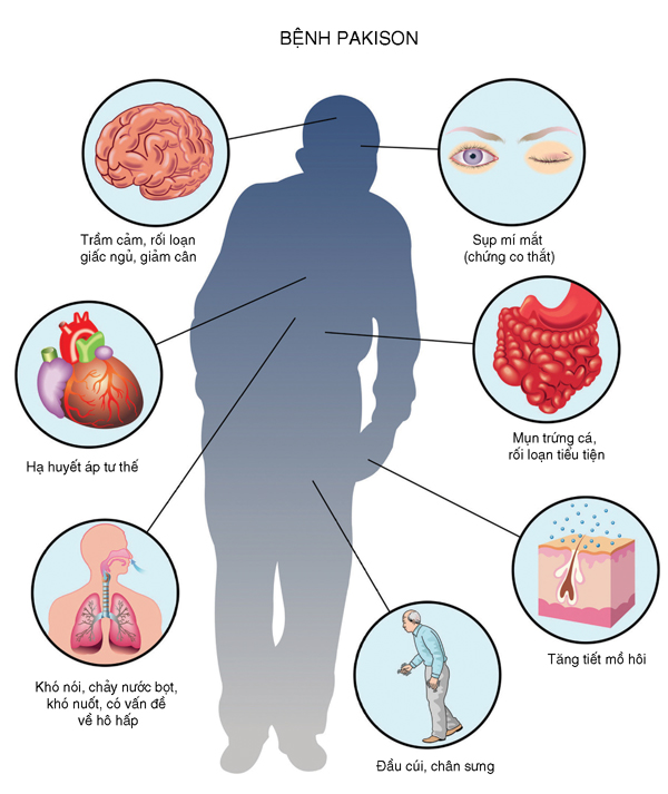 Thuốc chữa Parkinson levodopa
