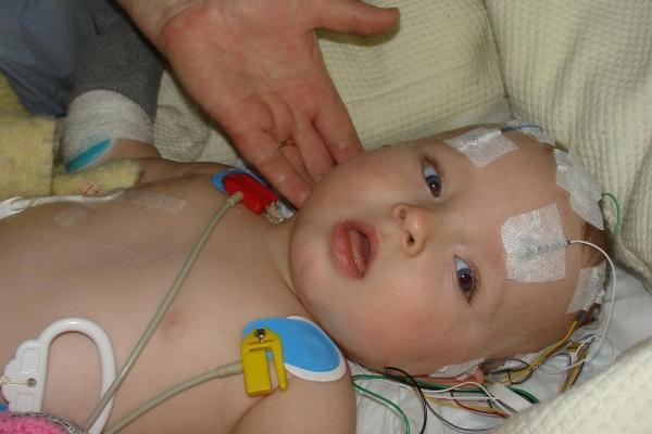 Cảnh báo trẻ sơ sinh  xuất huyết não do thiếu vitamin K