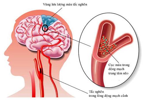 """Thuốc """"bổ não"""", có nên dùng để phòng bệnh?"""